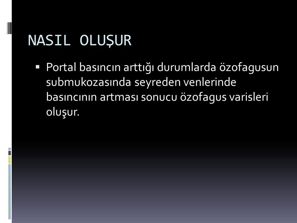 NASIL OLUŞUR Portal basıncın arttığı durumlarda özofagusun submukozasında seyreden venlerinde basıncının artması sonucu özofagus varisleri oluşur.