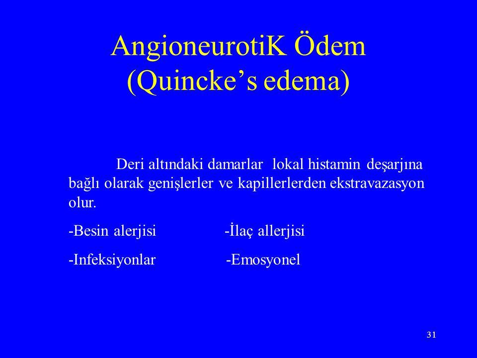 AngioneurotiK Ödem (Quincke's edema)