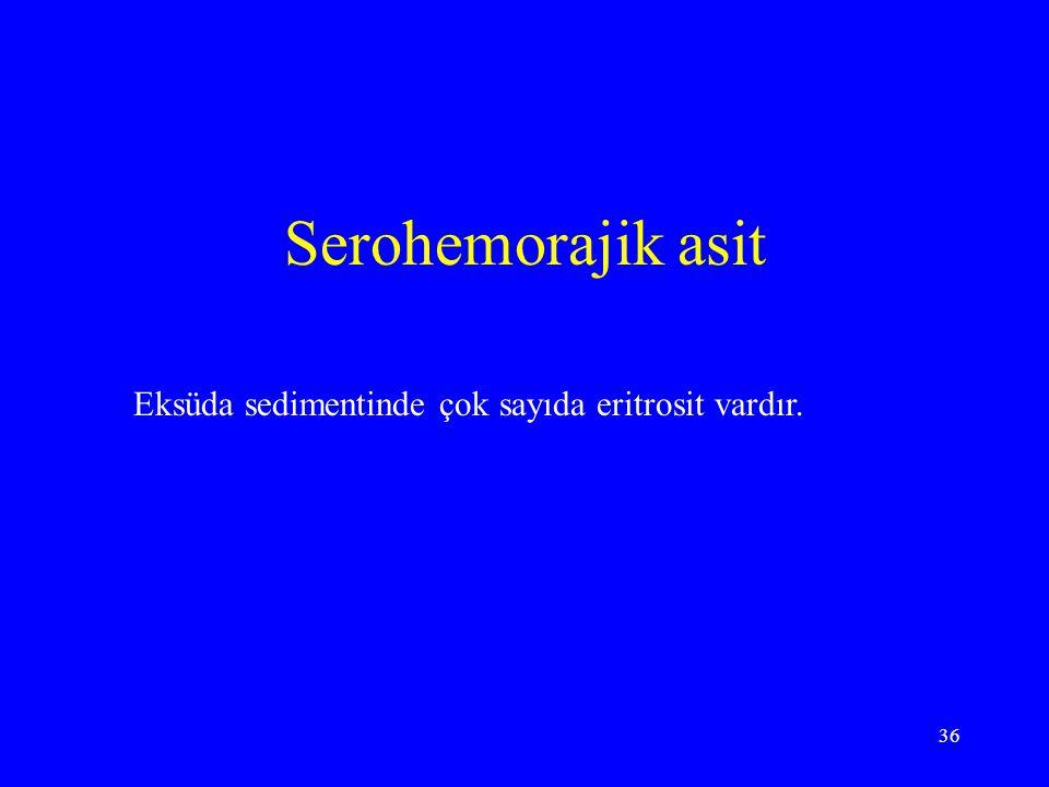 Serohemorajik asit Eksüda sedimentinde çok sayıda eritrosit vardır.
