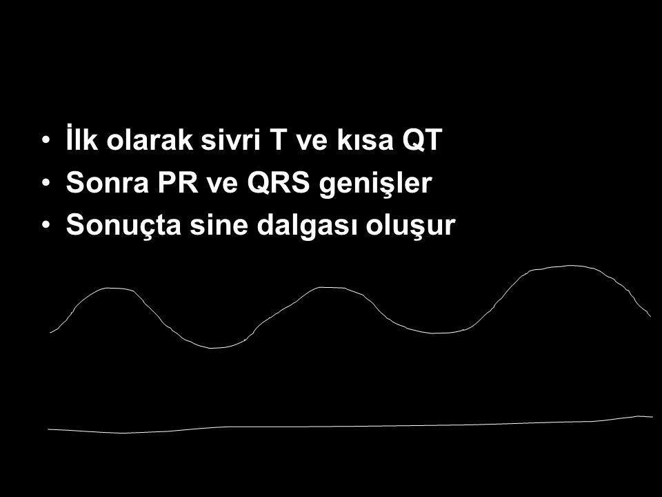 İlk olarak sivri T ve kısa QT Sonra PR ve QRS genişler