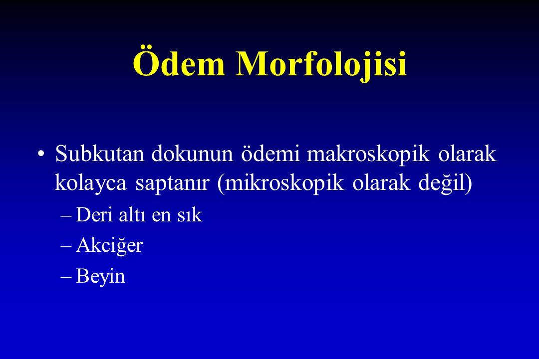 Ödem Morfolojisi Subkutan dokunun ödemi makroskopik olarak kolayca saptanır (mikroskopik olarak değil)
