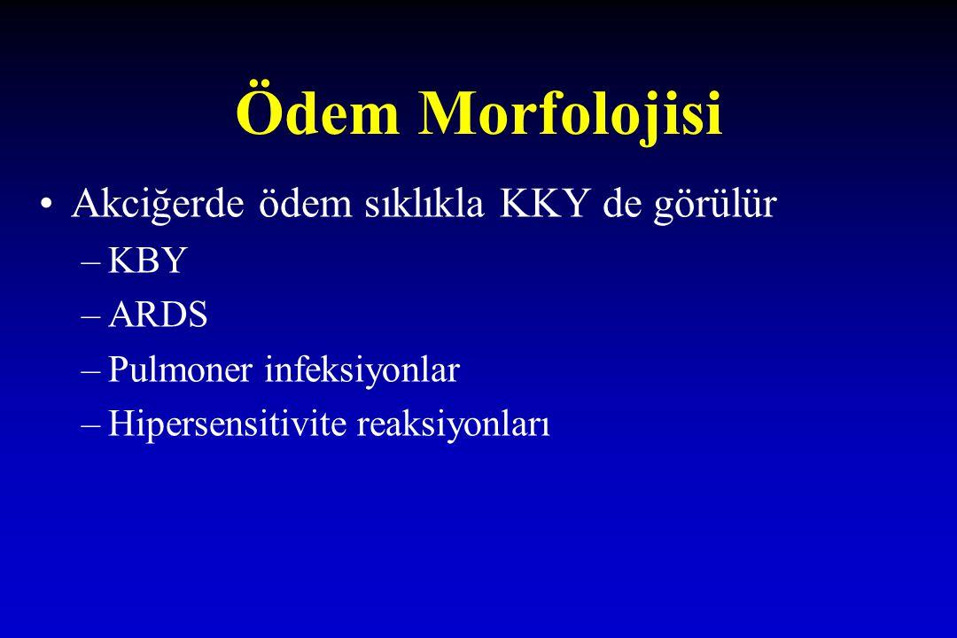 Ödem Morfolojisi Akciğerde ödem sıklıkla KKY de görülür KBY ARDS