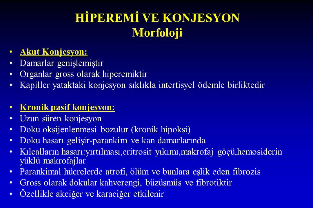 HİPEREMİ VE KONJESYON Morfoloji