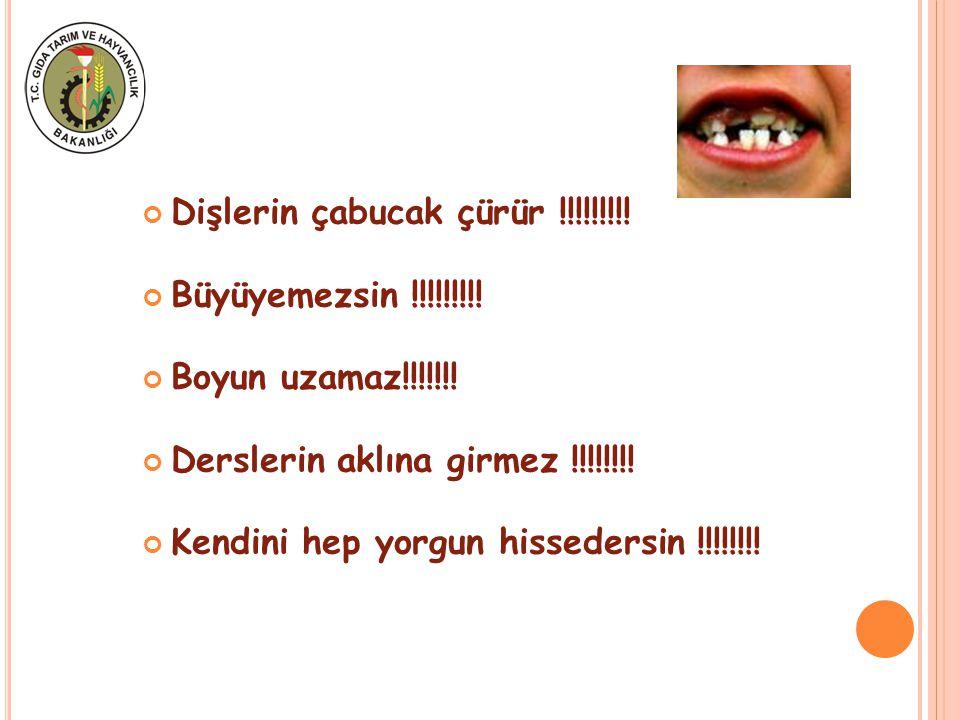 Dişlerin çabucak çürür !!!!!!!!!