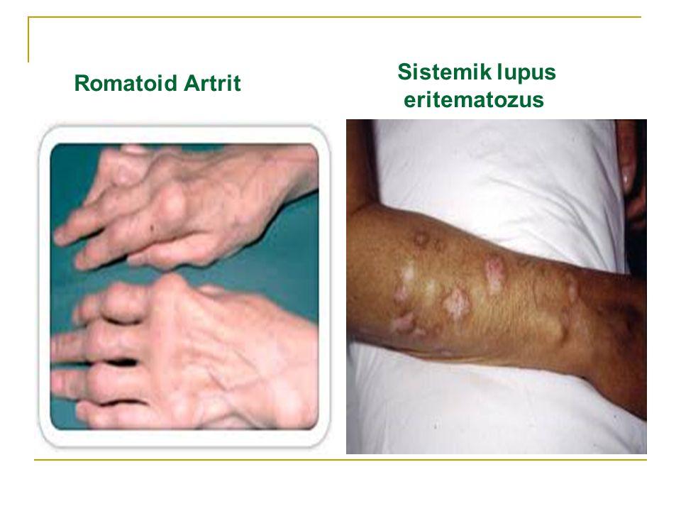 Sistemik lupus eritematozus Romatoid Artrit