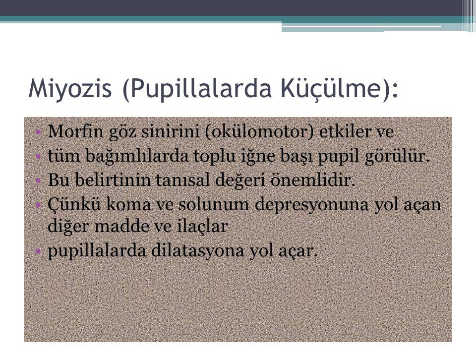 Miyozis (Pupillalarda Küçülme):