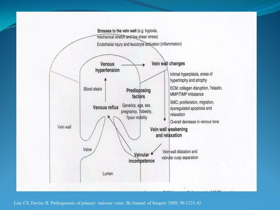 Lim CS, Davies H. Pathogenesis of primary varicose veins