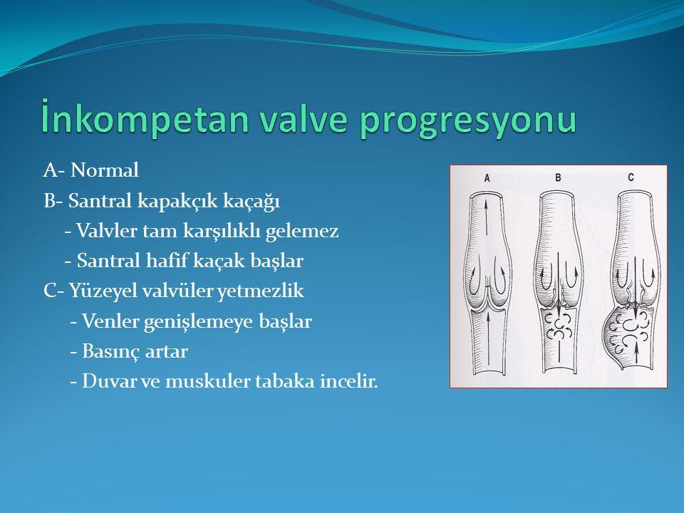 İnkompetan valve progresyonu