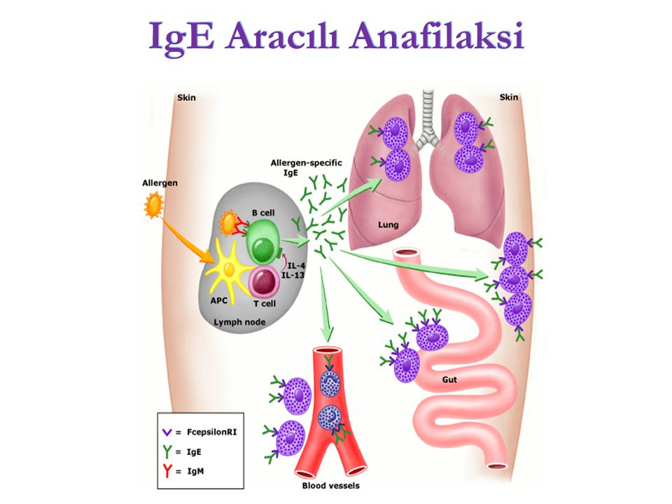 IgE Aracılı Anafilaksi
