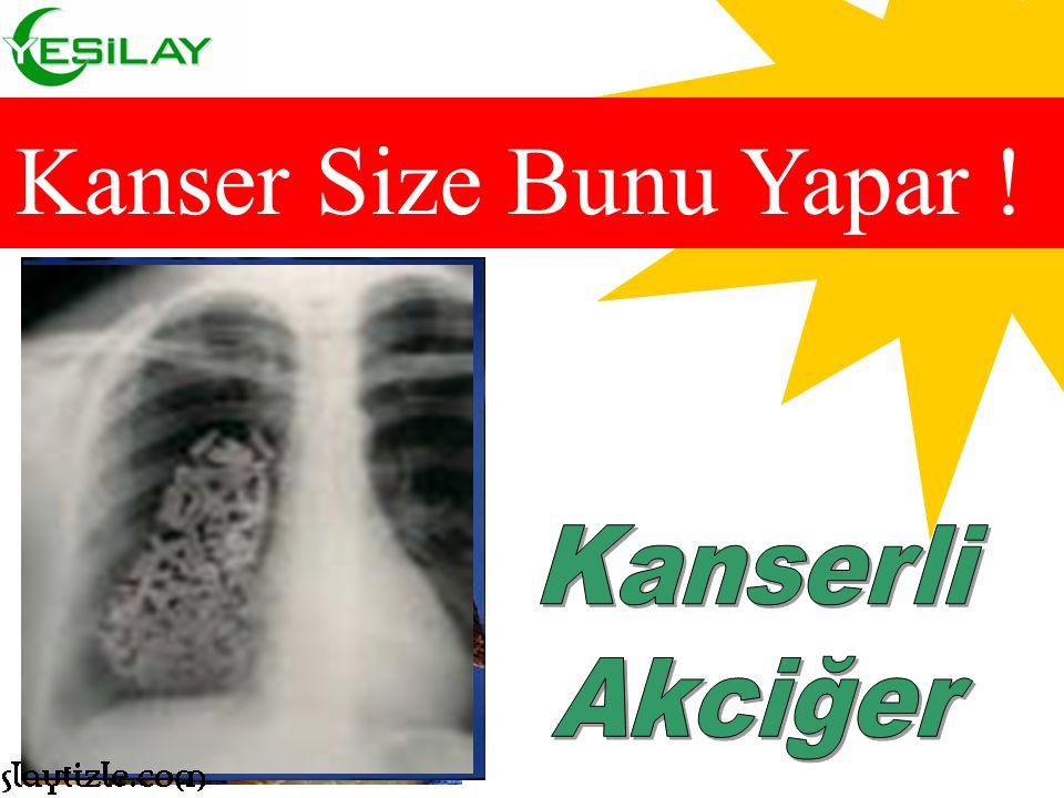 Kanser Size Bunu Yapar ! Kanserli Akciğer