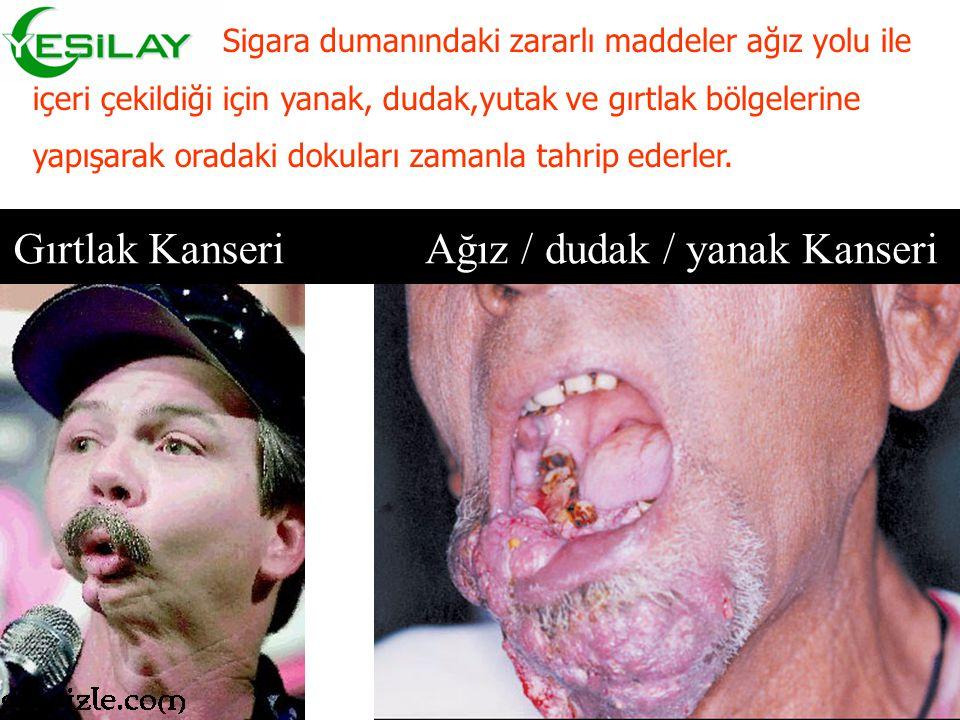 Ağız / dudak / yanak Kanseri