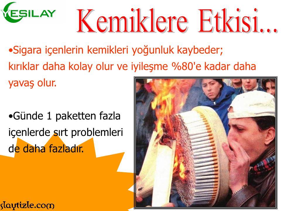 Kemiklere Etkisi... Sigara içenlerin kemikleri yoğunluk kaybeder;