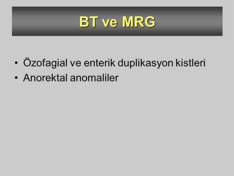 BT ve MRG Özofagial ve enterik duplikasyon kistleri