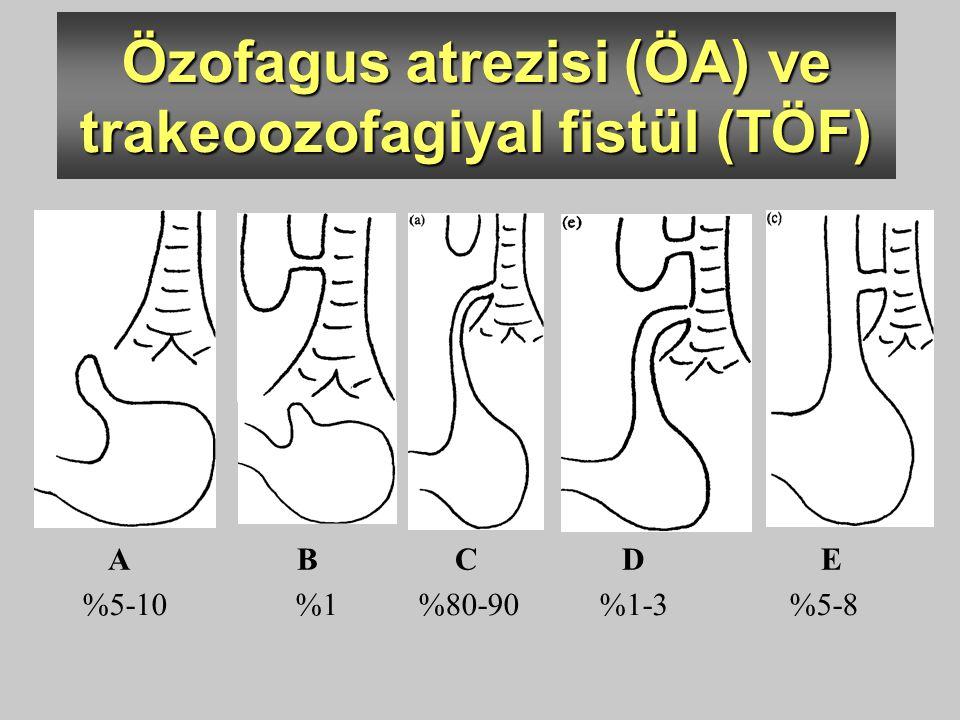 Özofagus atrezisi (ÖA) ve trakeoozofagiyal fistül (TÖF)