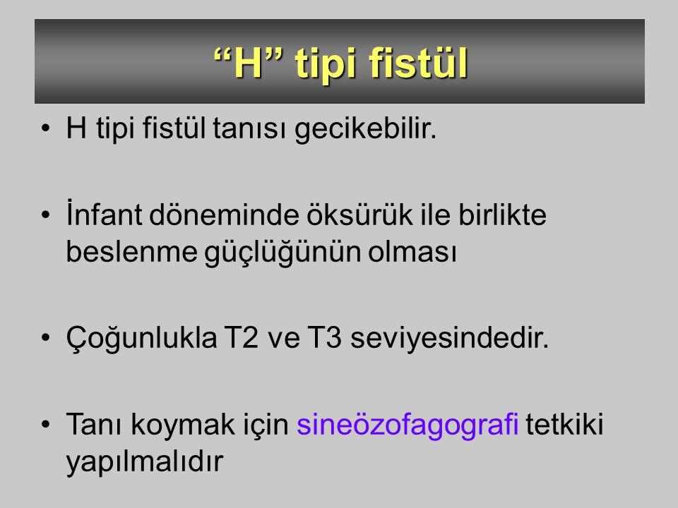 H tipi fistül H tipi fistül tanısı gecikebilir.
