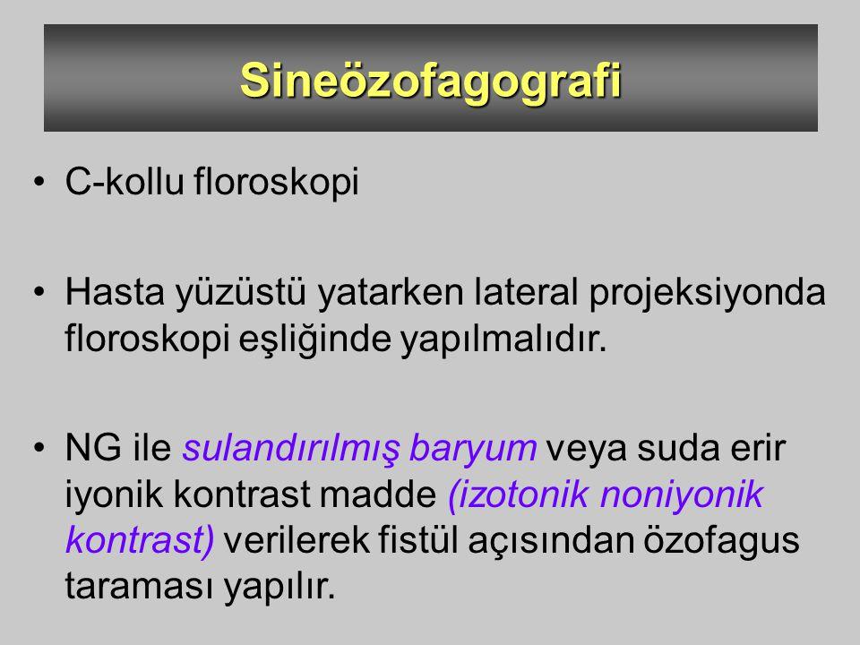 Sineözofagografi C-kollu floroskopi