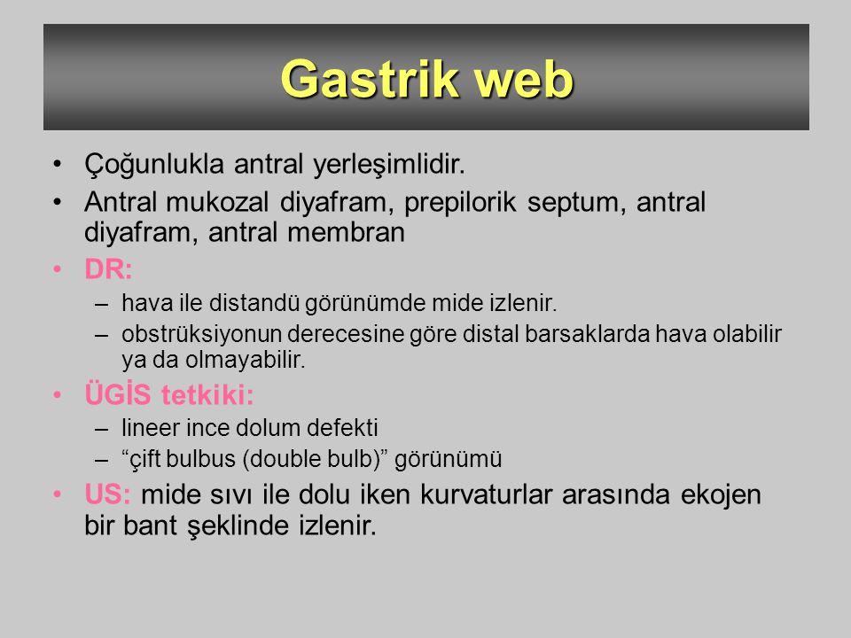Gastrik web Çoğunlukla antral yerleşimlidir.