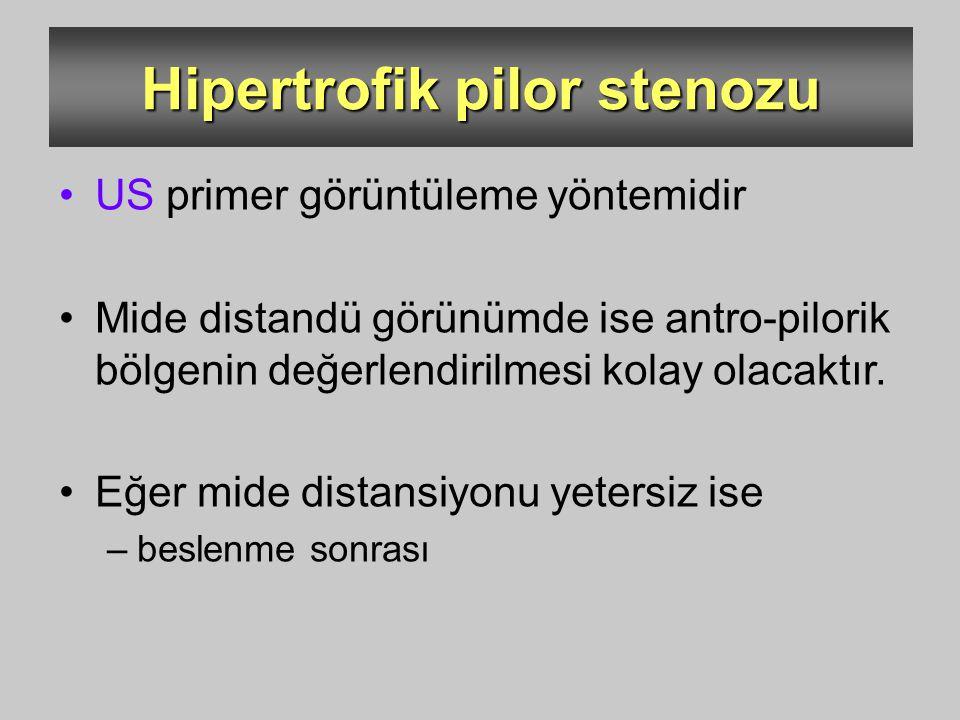 Hipertrofik pilor stenozu