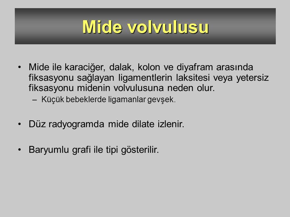 Mide volvulusu