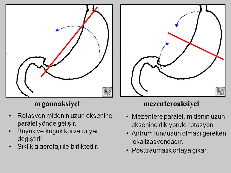 organoaksiyel mezenteroaksiyel Rotasyon midenin uzun eksenine