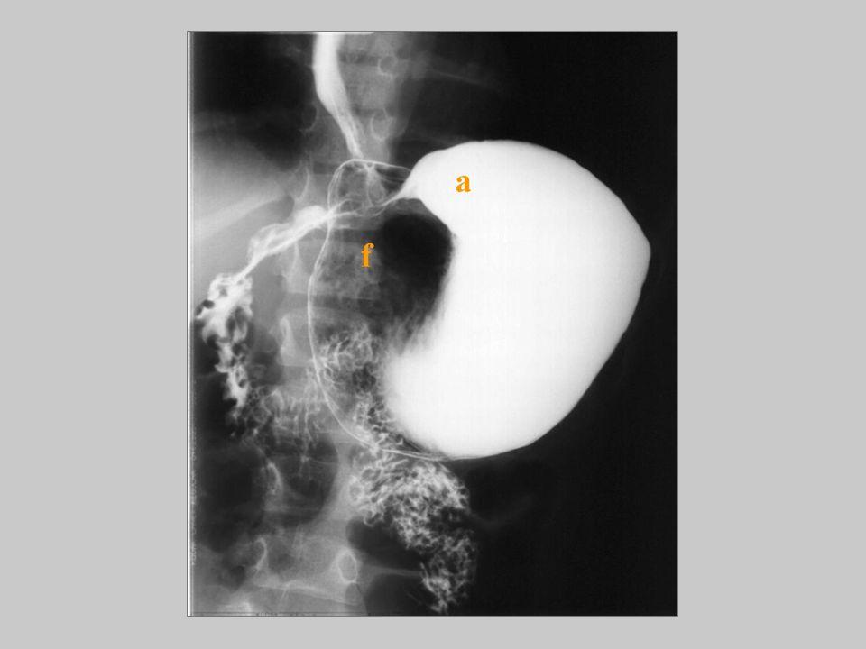 Mezenteroaksiyel volvulus