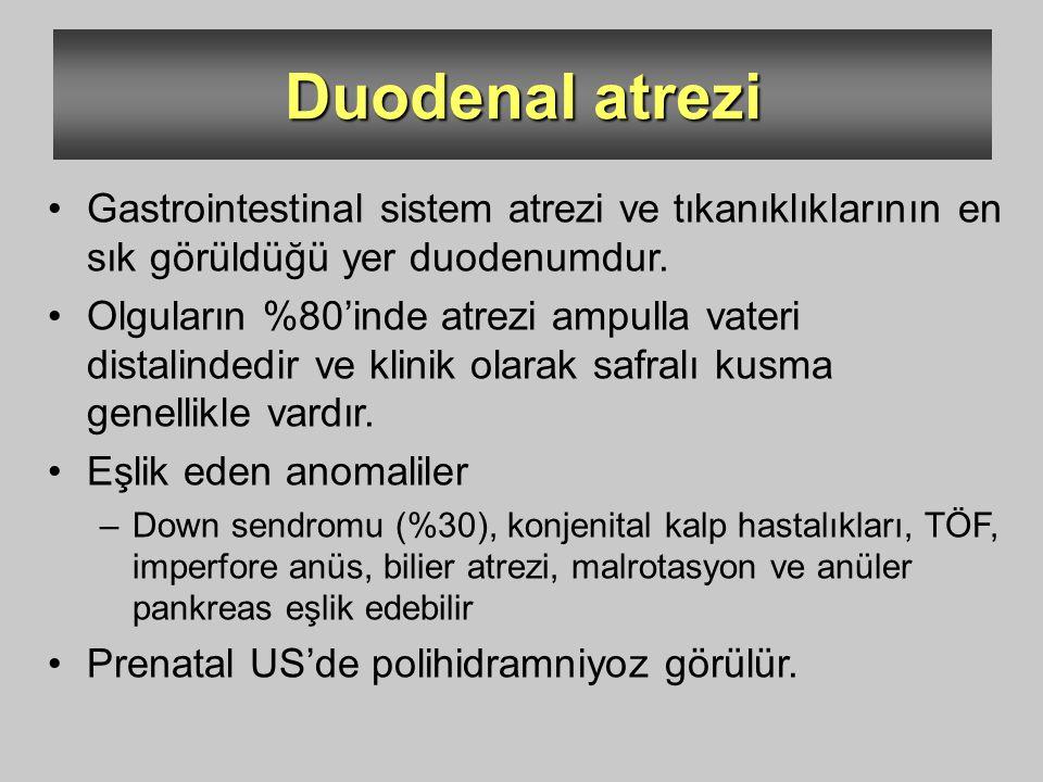 Duodenal atrezi Gastrointestinal sistem atrezi ve tıkanıklıklarının en sık görüldüğü yer duodenumdur.