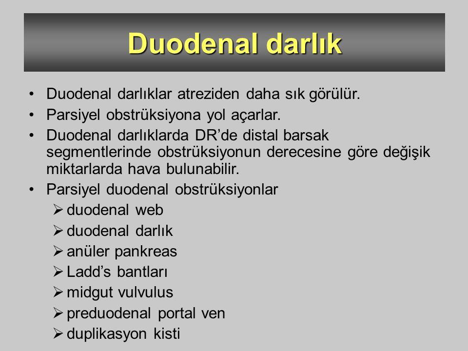 Duodenal darlık Duodenal darlıklar atreziden daha sık görülür.