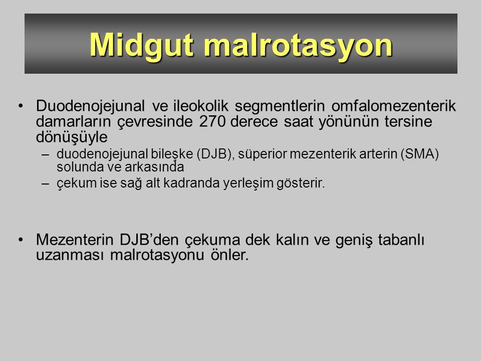Midgut malrotasyon Duodenojejunal ve ileokolik segmentlerin omfalomezenterik damarların çevresinde 270 derece saat yönünün tersine dönüşüyle.