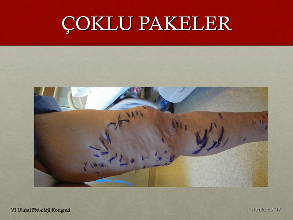 ÇOKLU PAKELER VI Ulusal Fleboloji Kongresi 13-15 Ocak 2012