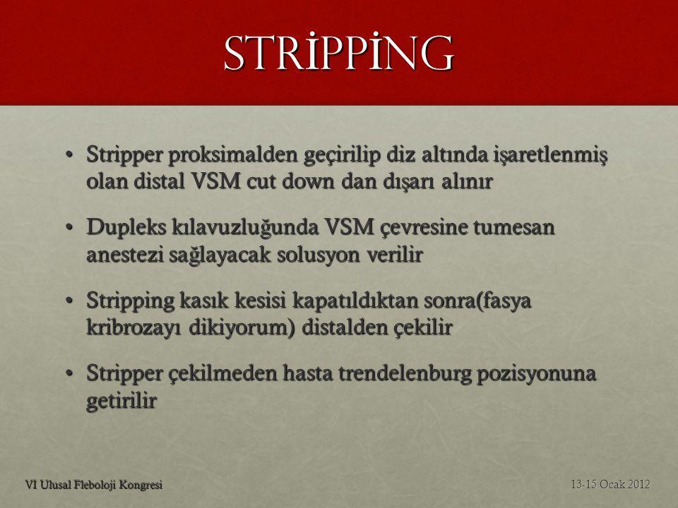 STRİPPİNG Stripper proksimalden geçirilip diz altında işaretlenmiş olan distal VSM cut down dan dışarı alınır.