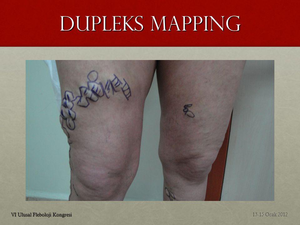 Dupleks Mapping VI Ulusal Fleboloji Kongresi 13-15 Ocak 2012