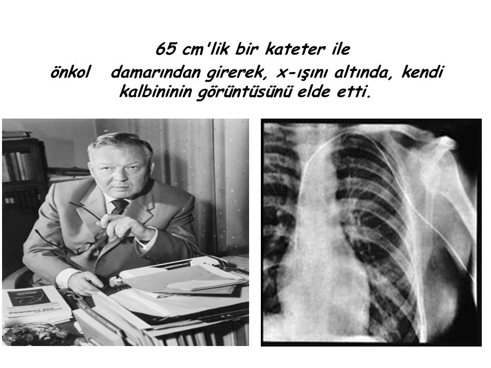 65 cm lik bir kateter ile önkol damarından girerek, x-ışını altında, kendi kalbininin görüntüsünü elde etti.