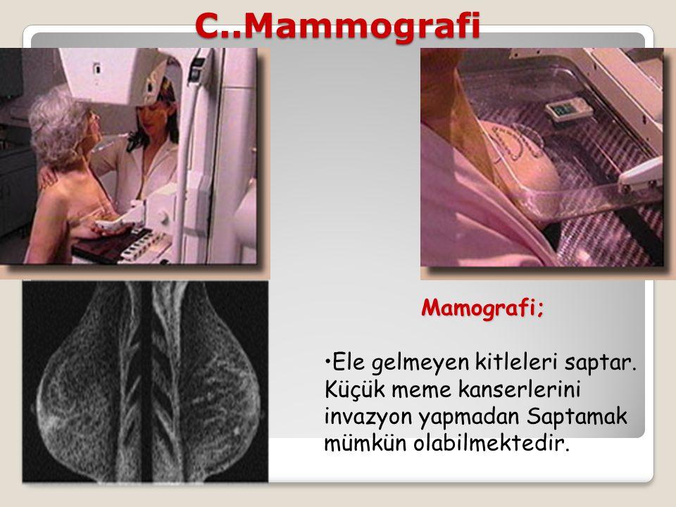 C..Mammografi Mamografi;