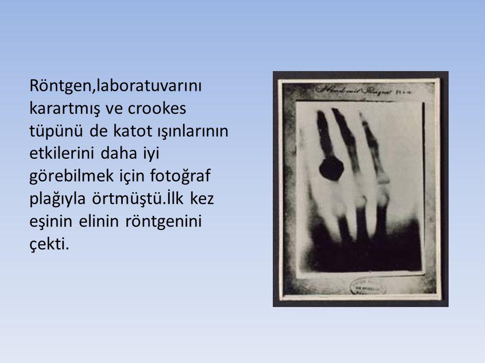 Röntgen,laboratuvarını karartmış ve crookes tüpünü de katot ışınlarının etkilerini daha iyi görebilmek için fotoğraf plağıyla örtmüştü.İlk kez eşinin elinin röntgenini çekti.