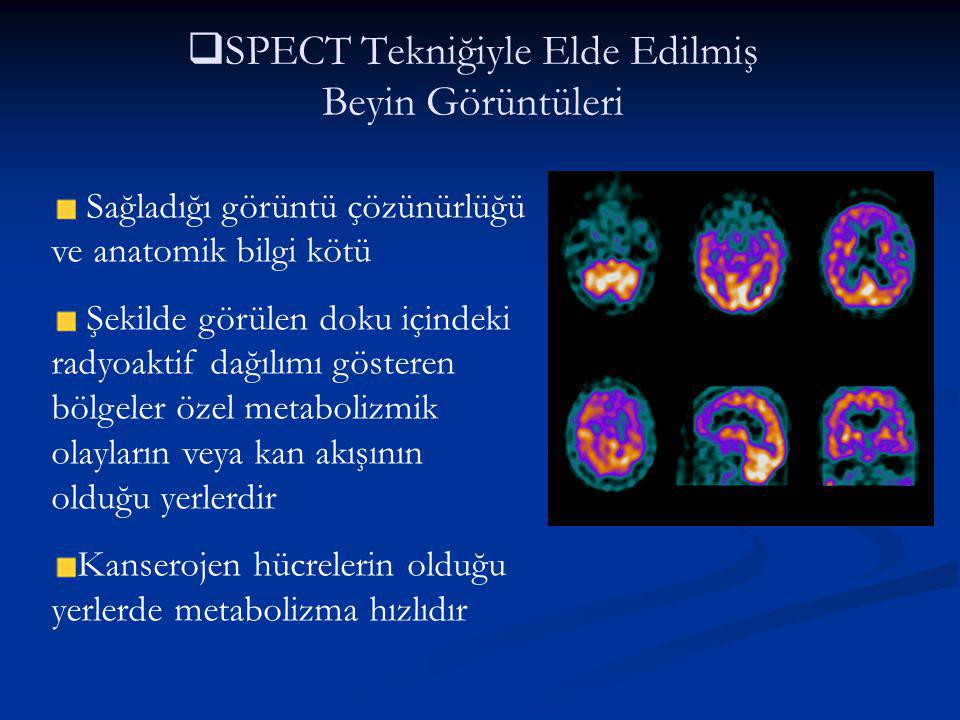 SPECT Tekniğiyle Elde Edilmiş Beyin Görüntüleri