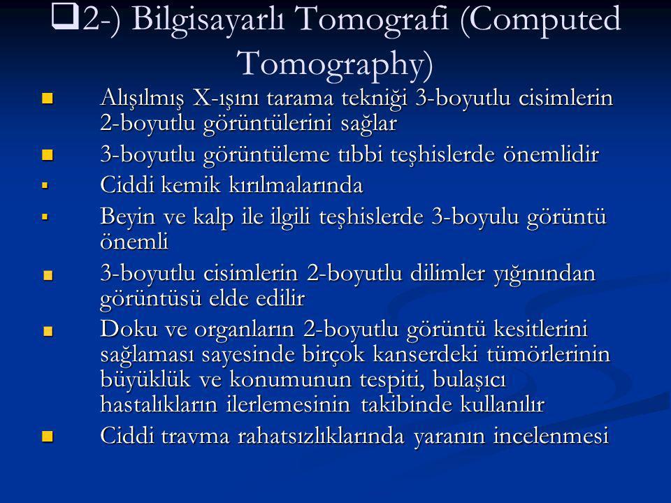 2-) Bilgisayarlı Tomografi (Computed Tomography)