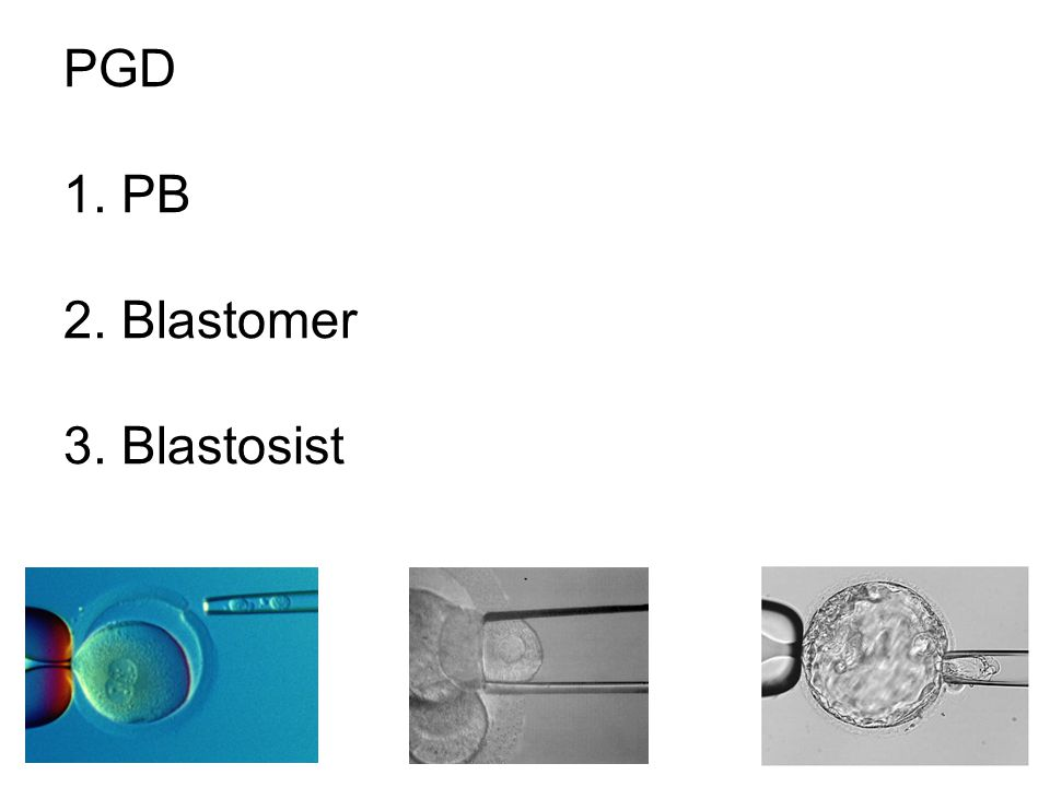 PGD 1. PB 2. Blastomer 3. Blastosist