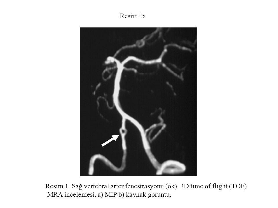 Resim 1a Resim 1. Sağ vertebral arter fenestrasyonu (ok).