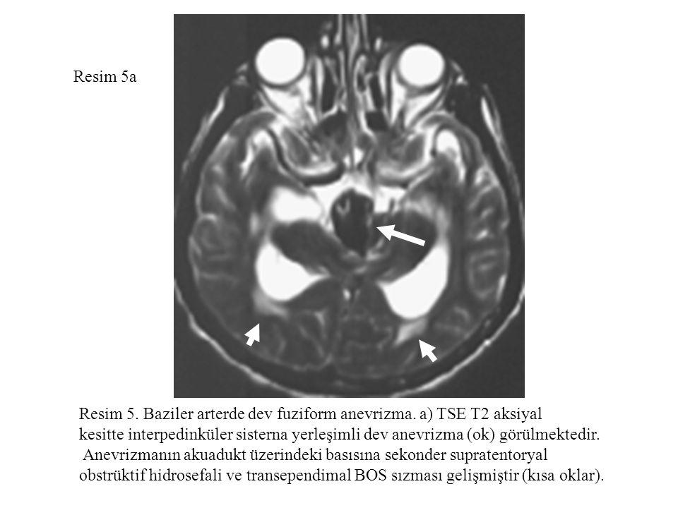 Resim 5a Resim 5. Baziler arterde dev fuziform anevrizma. a) TSE T2 aksiyal.