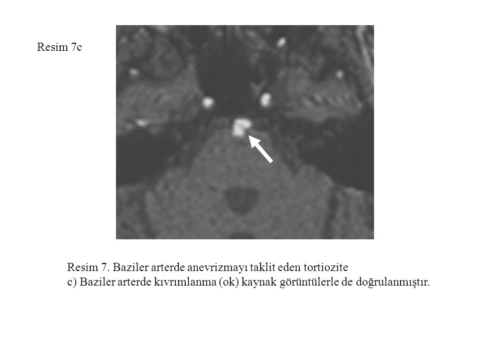 Resim 7c Resim 7. Baziler arterde anevrizmayı taklit eden tortiozite.