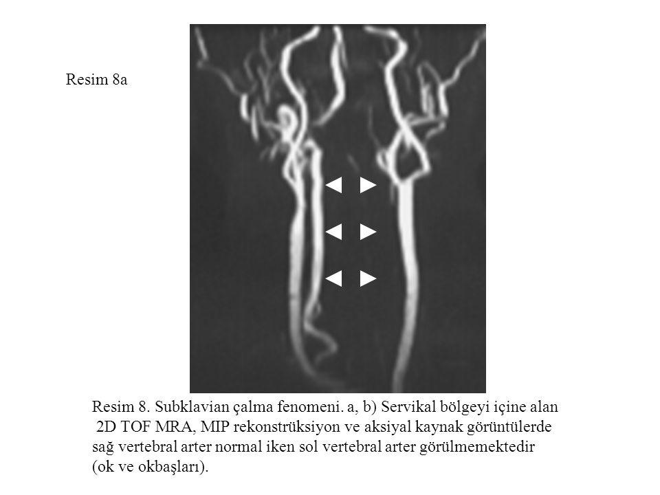 Resim 8a Resim 8. Subklavian çalma fenomeni. a, b) Servikal bölgeyi içine alan. 2D TOF MRA, MIP rekonstrüksiyon ve aksiyal kaynak görüntülerde.