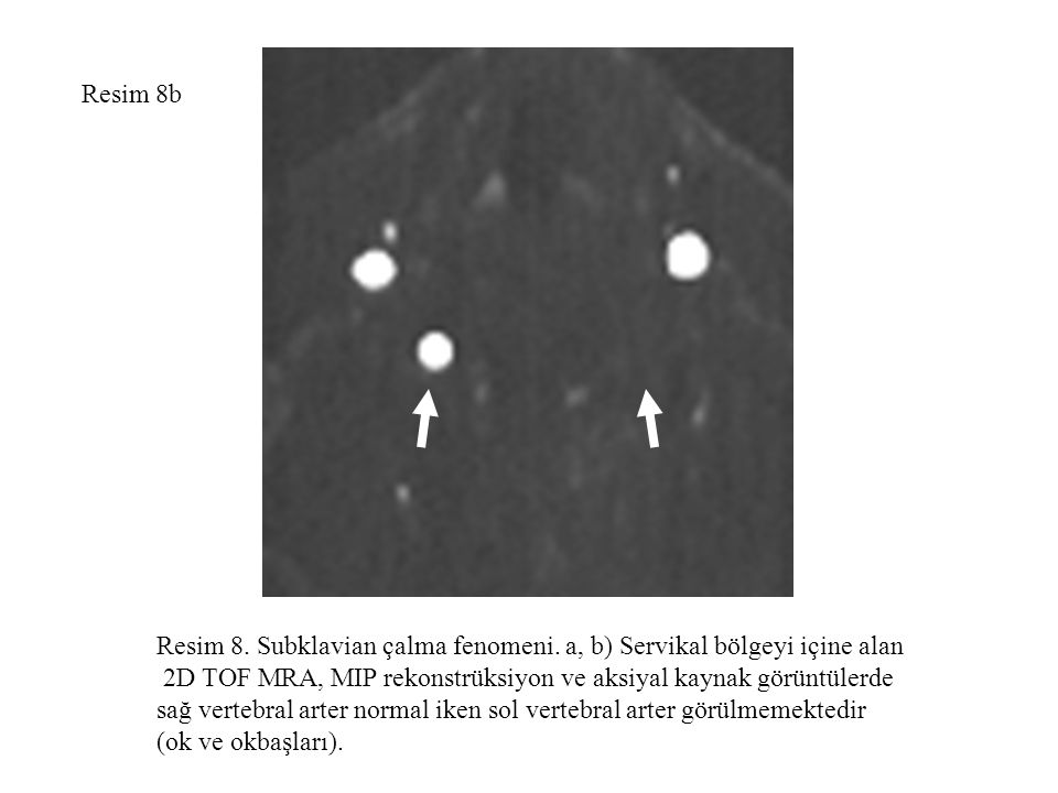 Resim 8b Resim 8. Subklavian çalma fenomeni. a, b) Servikal bölgeyi içine alan. 2D TOF MRA, MIP rekonstrüksiyon ve aksiyal kaynak görüntülerde.