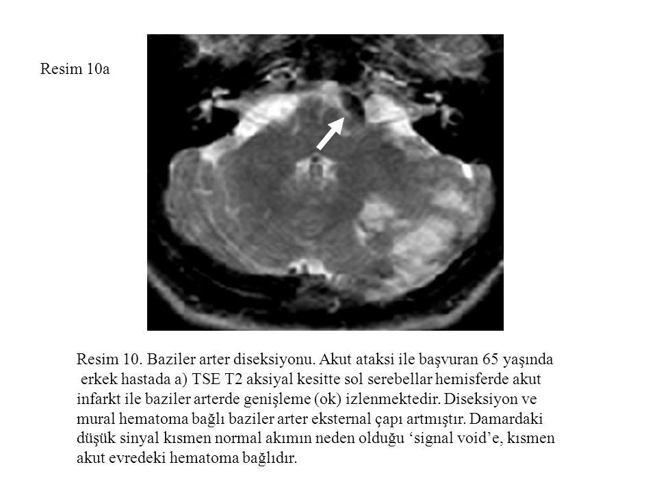 Resim 10a Resim 10. Baziler arter diseksiyonu. Akut ataksi ile başvuran 65 yaşında.