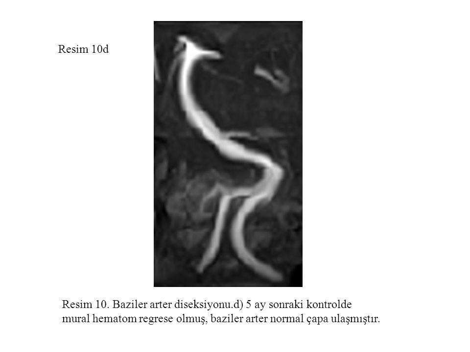 Resim 10d Resim 10. Baziler arter diseksiyonu.d) 5 ay sonraki kontrolde.