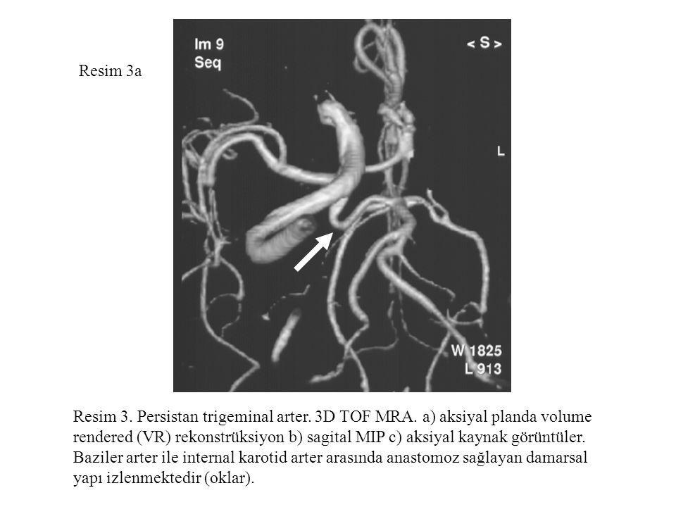 Resim 3a Resim 3. Persistan trigeminal arter. 3D TOF MRA. a) aksiyal planda volume.