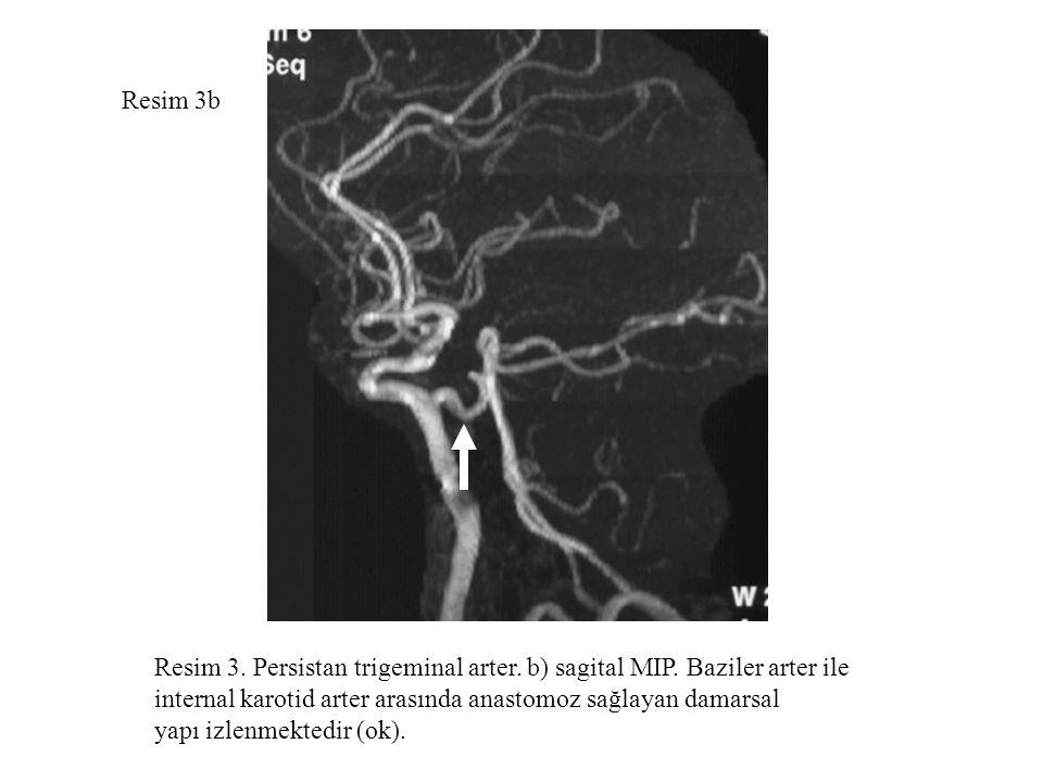 Resim 3b Resim 3. Persistan trigeminal arter. b) sagital MIP. Baziler arter ile. internal karotid arter arasında anastomoz sağlayan damarsal.