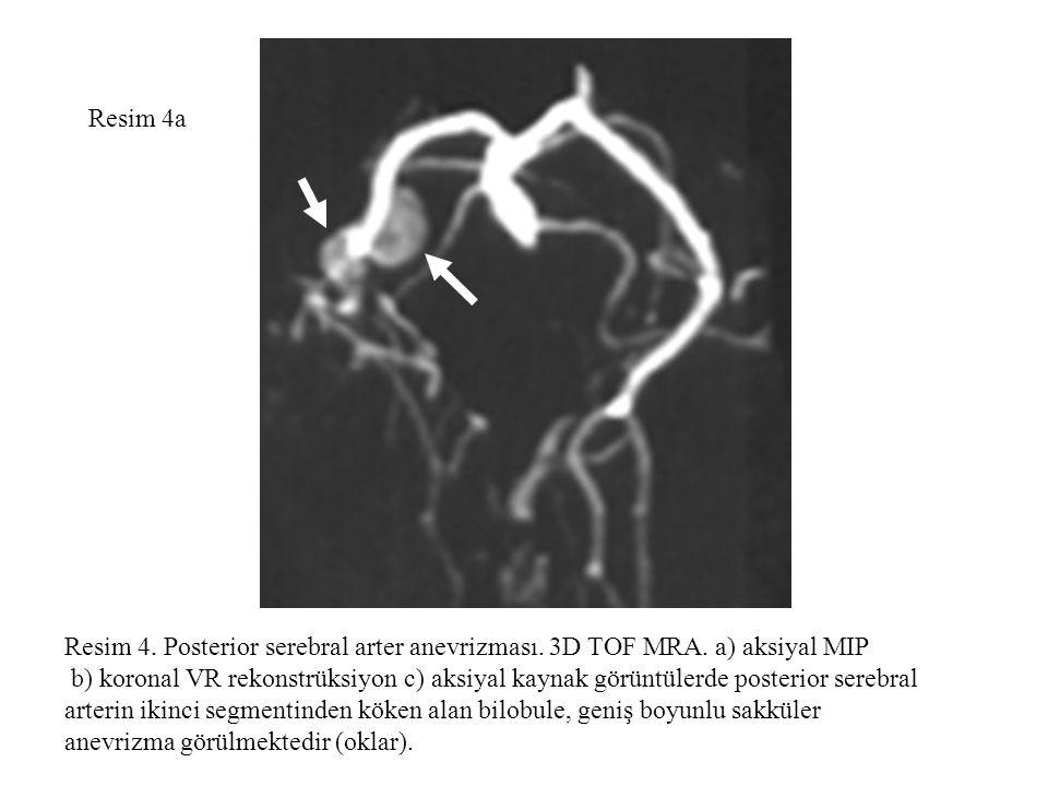 Resim 4a Resim 4. Posterior serebral arter anevrizması. 3D TOF MRA. a) aksiyal MIP.