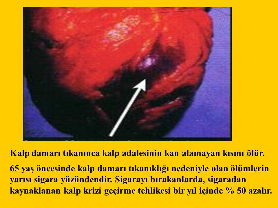 Kalp damarı tıkanınca kalp adalesinin kan alamayan kısmı ölür.