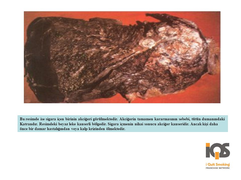 Bu resimde ise sigara içen birinin akciğeri görülmektedir