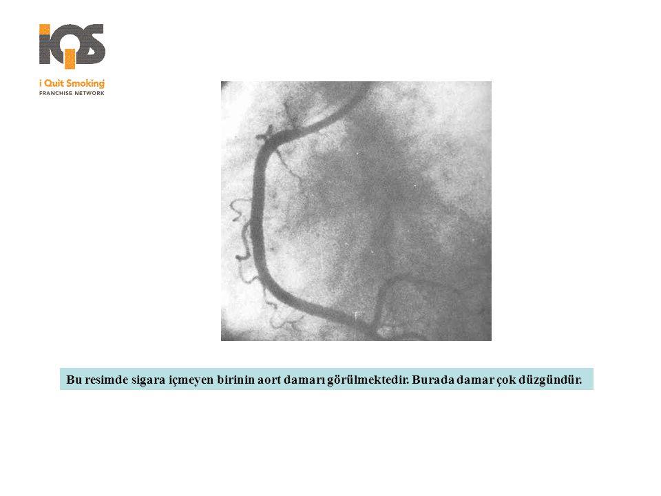 Bu resimde sigara içmeyen birinin aort damarı görülmektedir